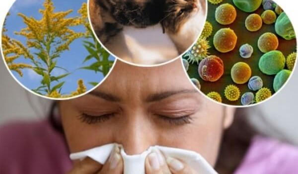 Что делать в момент острого проявления аллергии