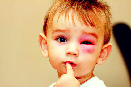 Малыш, как тебя жалко: у тебя болят глазки
